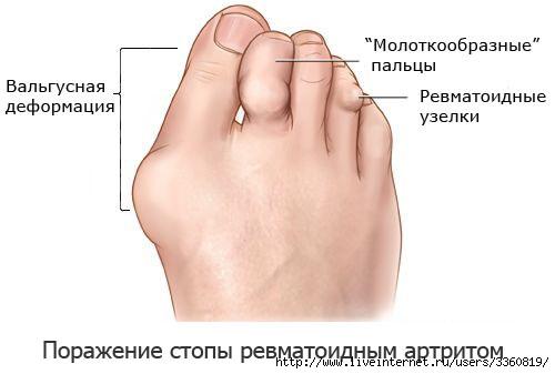 излагаете ревматоидный артрит стоп ног фото логично коненечно