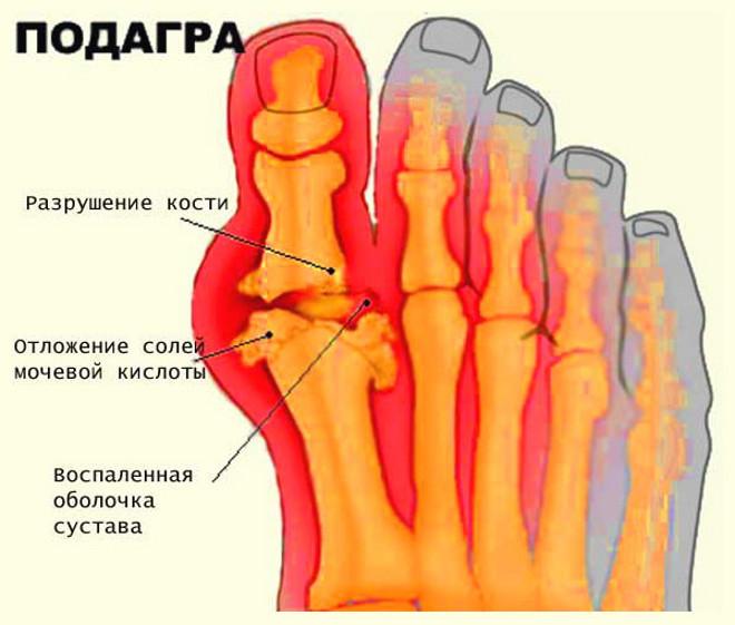 Народная медицина воспаления суставов пальцев насыпь мне соль на рану артропластика мелких суставов кистей рук