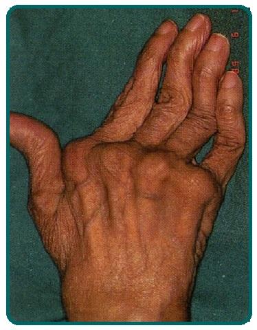 картинки деформация руки ассортимент товаров