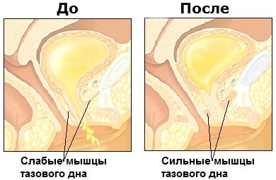seks-simpatichnih-mishtsi-vlagalisha-foto-ochko-transa-uzbechki