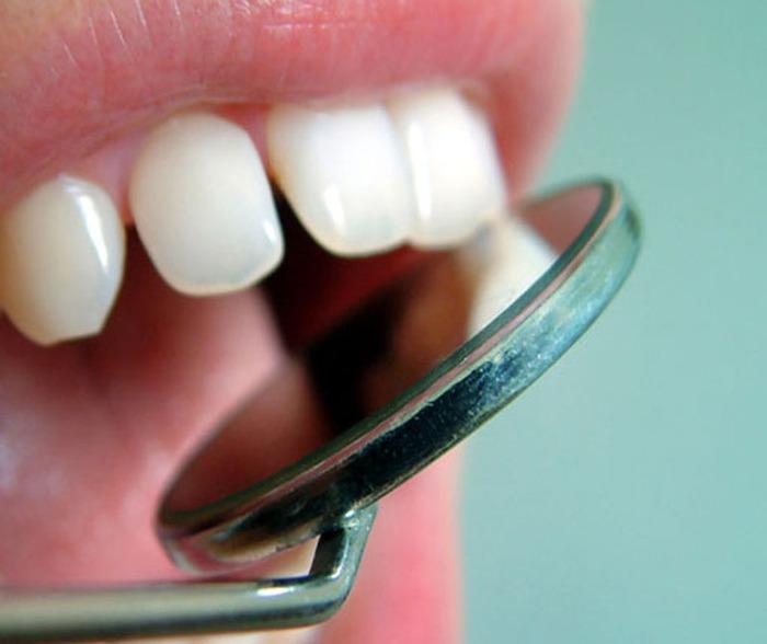 Augmentin Dental Abscess Metronidazole And Amoxicillin