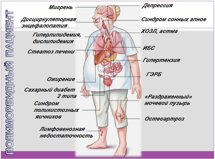 Коморбидные заболевания при сахарном диабете