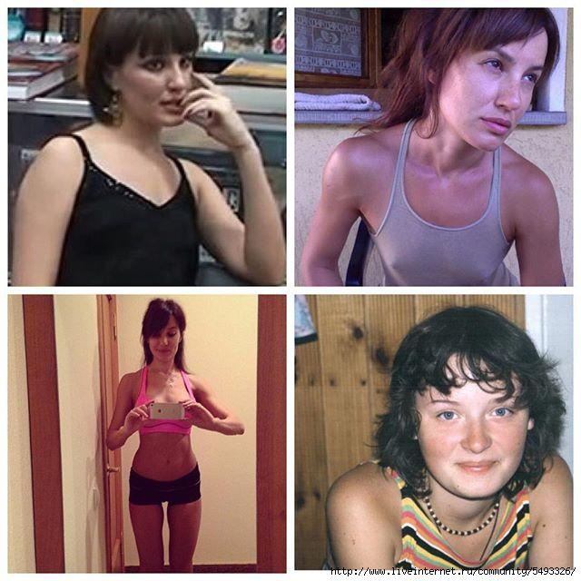 лена миро до и после похудения фото чего хирург выделяет