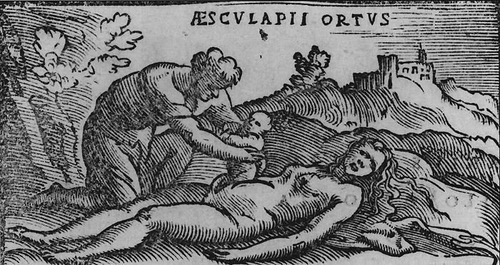 Почему самой известной в акушерстве операции присвоили название «кесарево сечение»
