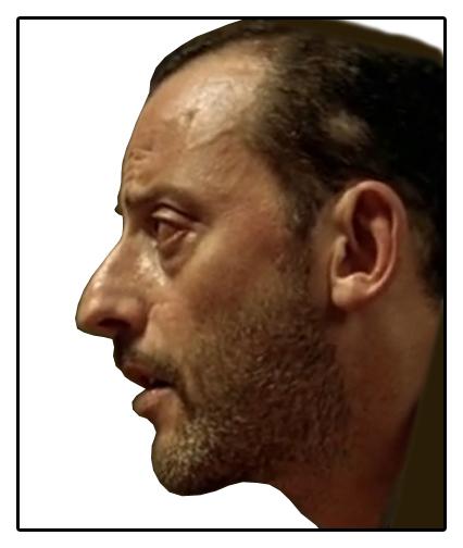 Фото еврейские носы форма