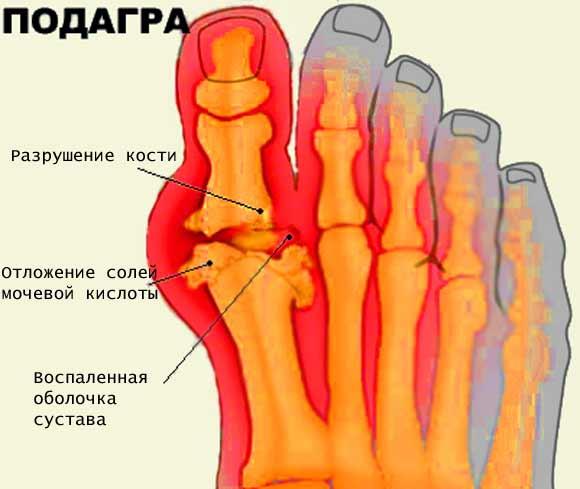 Диета при воспалении суставов на руках что нельзя при артрозе тазобедренного сустава