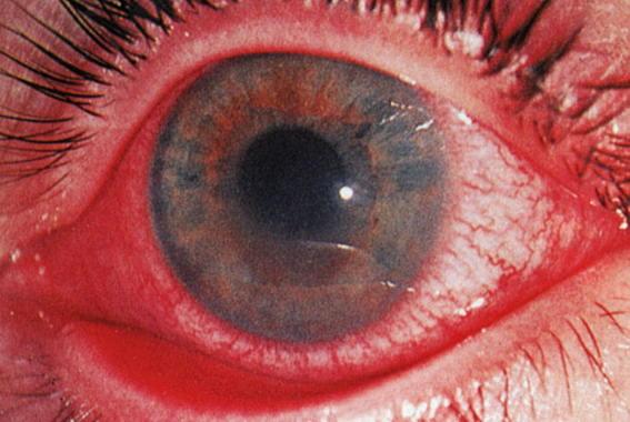 Иридоциклит. Симптомы, признаки и лечение иридоциклита. Обсуждение ...