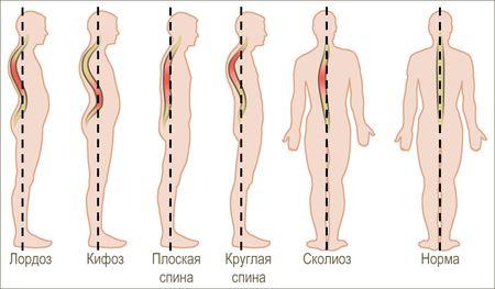 Характерные симптомы и признаки остеохондроза. Обсуждение на ...