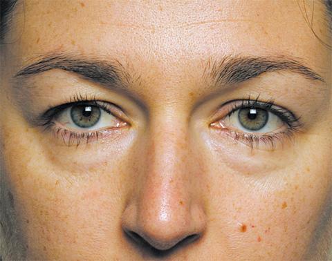 Как избавиться от тёмных кругов (синяков) под глазами