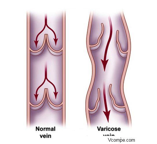 Реальное увеличение полового члена навсегда с помощью операции лигаментотомии
