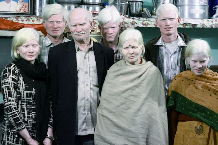 Самая большая семья альбиносов живет в Индии