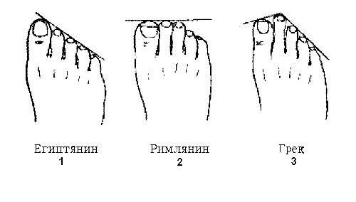 Форма ступни негра