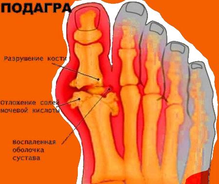 Операция Халюс Вальгус в Киеве