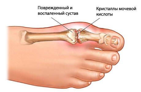 Суставы пальцев лечения ванга преимущество мрт плечевого сустава перед узи
