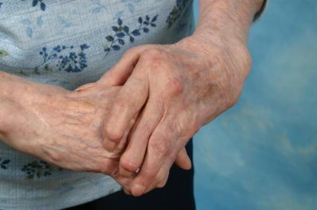 Причины и лечение артроза тазобедренного сустава