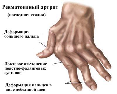 1259869_arthrit2 (400x320, 60Kb)