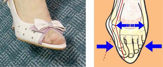 Шишка на ноге лечение медикаментозное