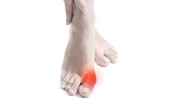 Как лечить или убрать косточку на ноге причины удаление народные средства