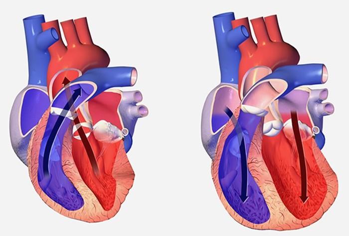 142546081 062418 0500 3 Гипертензия: названо неожиданное преимущество высокого кровяного давления