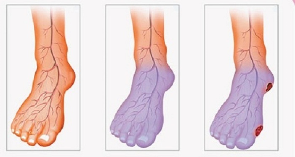 poor-blood-circulation-cold-legs-hands-can-solve-problem (1) (600x320, 228Kb)