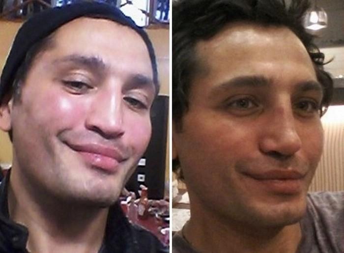 Мужчины российского шоу бизнеса, которые увлечены пластикой лица