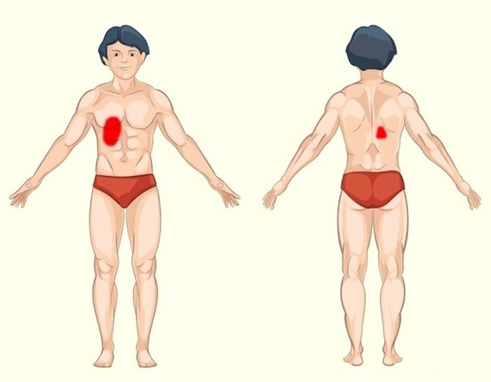 Как определить причину боли по месту ее локализации: 9 способов