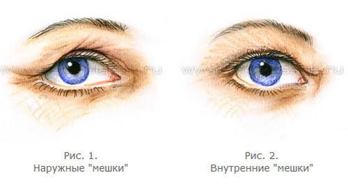 3720816_Anatomiya_stareniya_verhnih_i_nijnih_vek_7_1_ (500x265, 19Kb)
