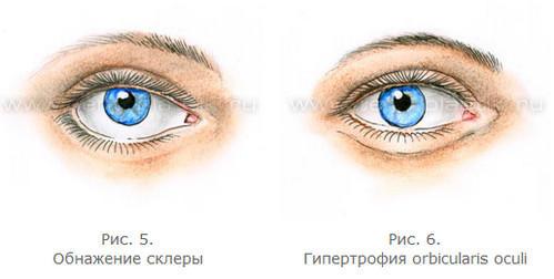 3720816_Anatomiya_stareniya_verhnih_i_nijnih_vek_9 (499x252, 18Kb)