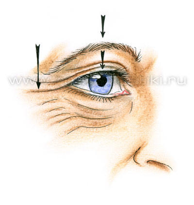 Анатомия старения верхних и нижних век (3) (400x423, 75Kb)