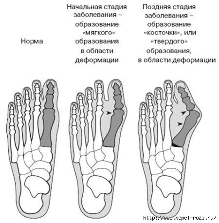 Косточки на ногах вылечить