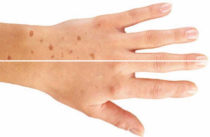 Крем здоровая кожа от псориаза