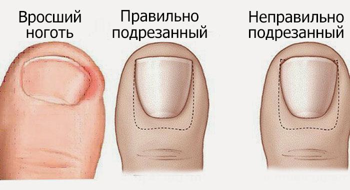 лечение вросшего ногтя - Самое интересное в блогах