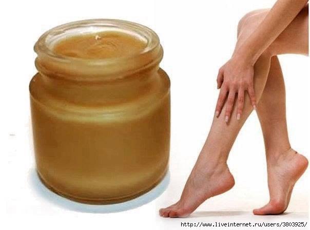 Какой бывает и как проводится операция на варикозном расширении вен на ногах
