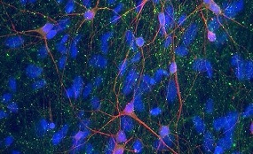 ips_neurons_ (285x174, 90Kb)