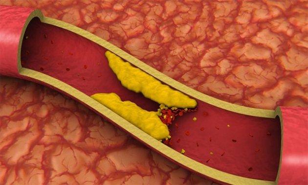 Повышен холестерин и глюкоза в крови