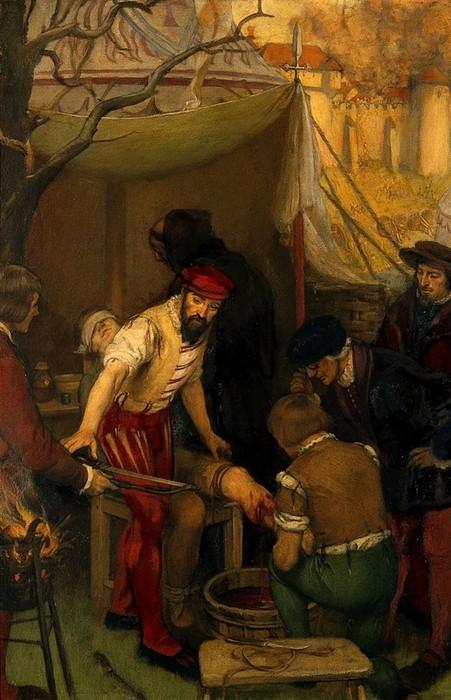 Краткая история военно полевой хирургии