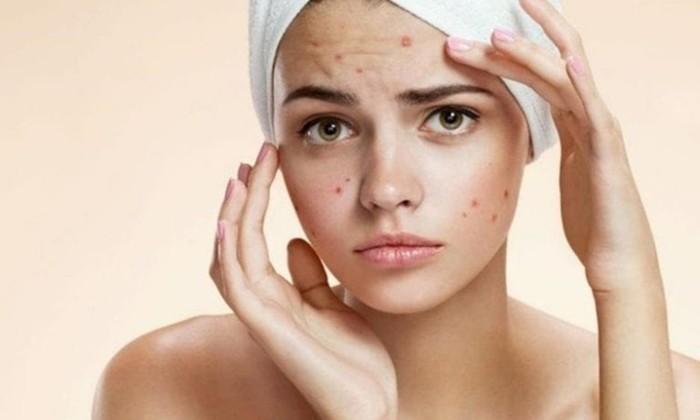 10 советов по уходу за проблемной кожей лица