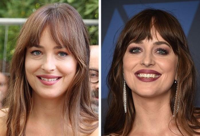 Новая улыбка знаменитостей, которые изменили свои зубы